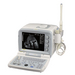 B ultrasound scanner kx2000G