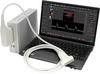 SmartUs - Digital High Performance Echo Color Doppler