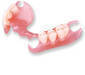 Invisible denture
