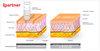 Ipartner beauty salon equipment: Skin pen E1 - Micro-needling therapy